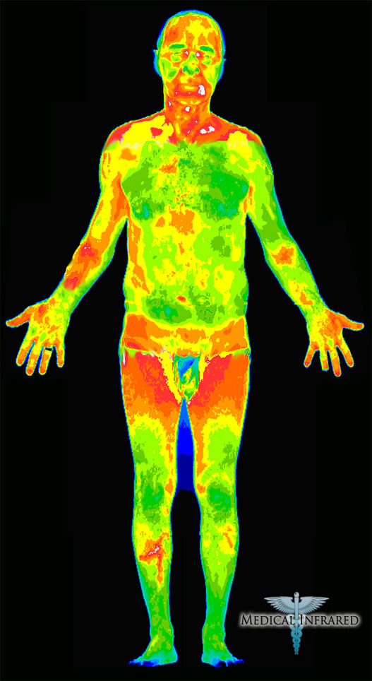 Human Body Thermography
